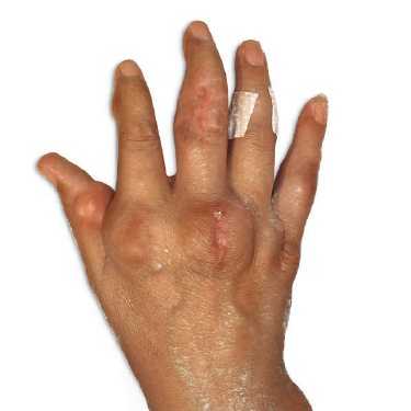 Visible tophi in hands before and after treatment with KRYSTEXXA